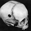 Trepanning: Skull by Granger