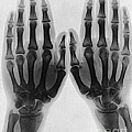 X-ray Of Two Normal Hands, 1896 by Wellcome Images
